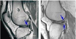 Рентген снимок травмы мениска