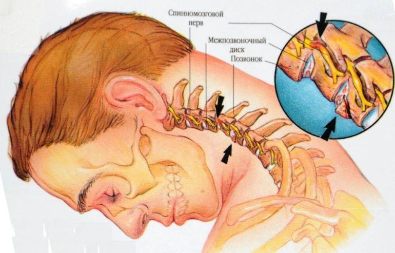 Нерв и позвонки на шее