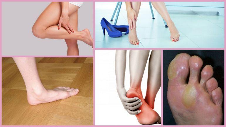 Признаки и симптомы плоскостопия