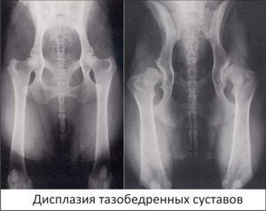 рентген ТБС