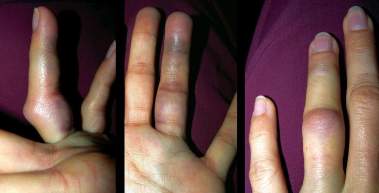 Ушиб пальца руки