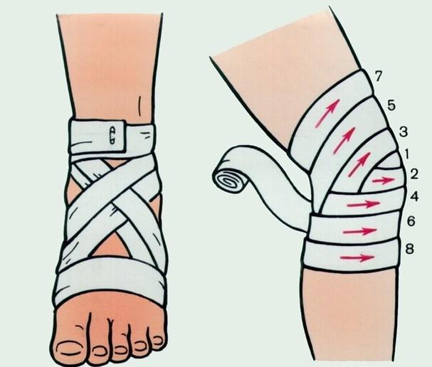 Бинт на колено применение