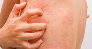 Побочные эффекты в виде аллергии