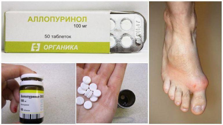 Алопуринол нструкця таблетки диета какая нужна