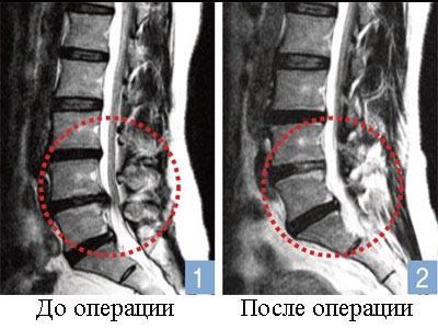 Операции по удалению грыжи