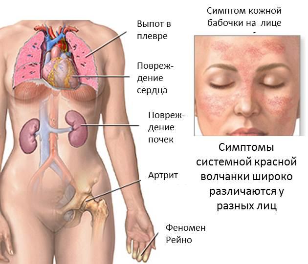 Гръден неврит или радикулит