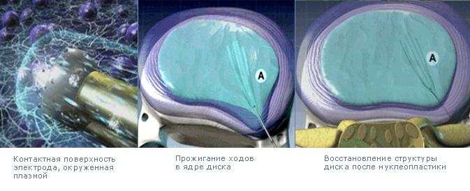 Неклеопластика холодноплазменная