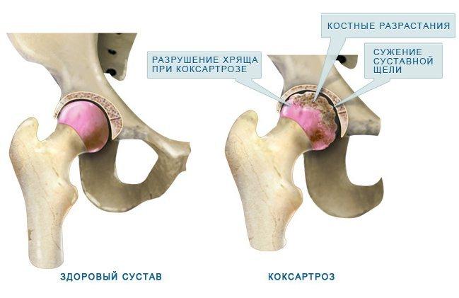 Признаки коксартроза сустава