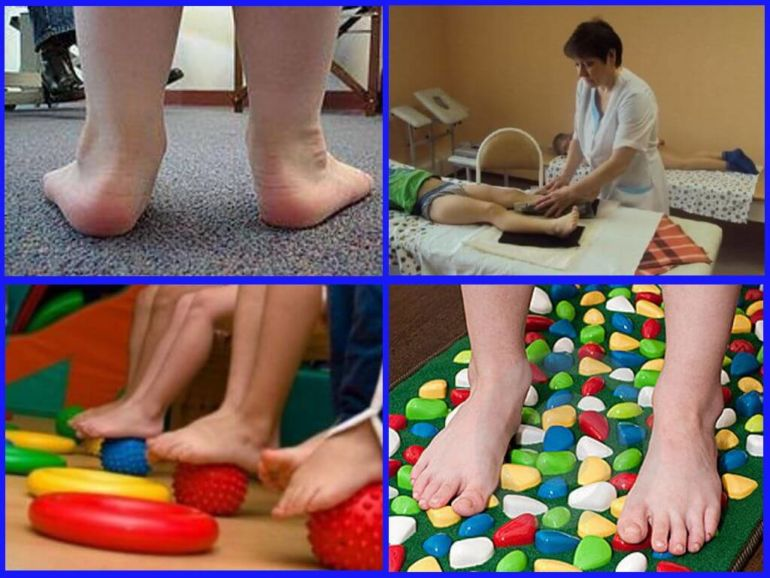 Плоско-вальгусные стопы лечение