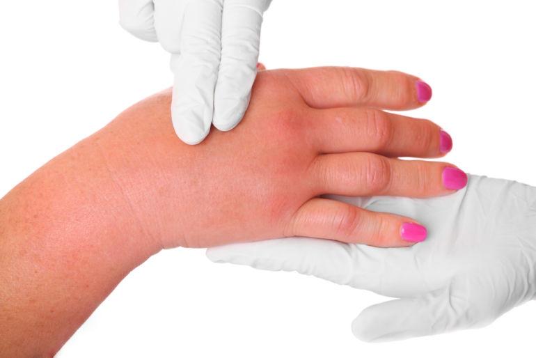 Отечность суставов пальцев рук может ли повредить суставам подводный массаж