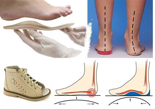 Стельки ортопедические и ноги