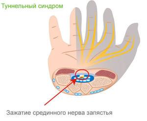 Причины отеков рук