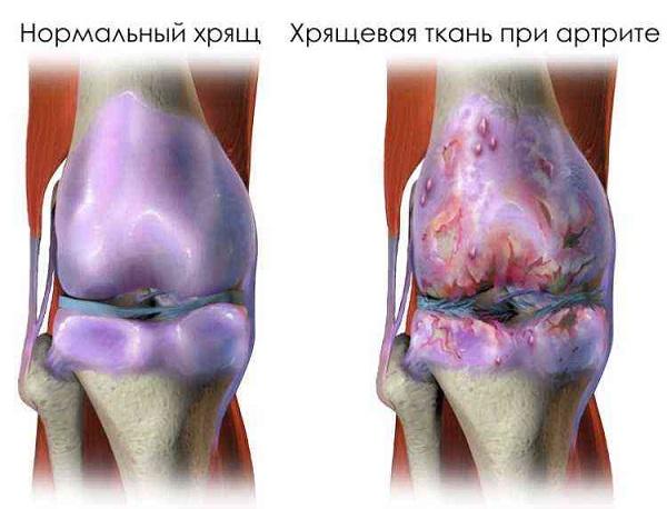 заболевание коленного сустава артритом